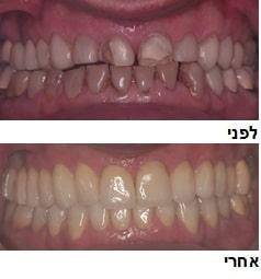 מומחה לשיקום הפה ברעננה