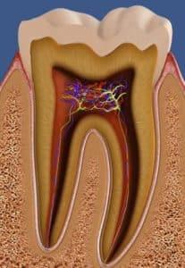 שן לפני טיפול שורש