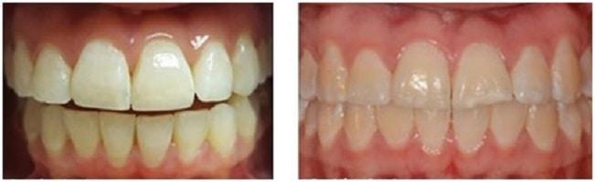 כתמים לבנים בשיניים