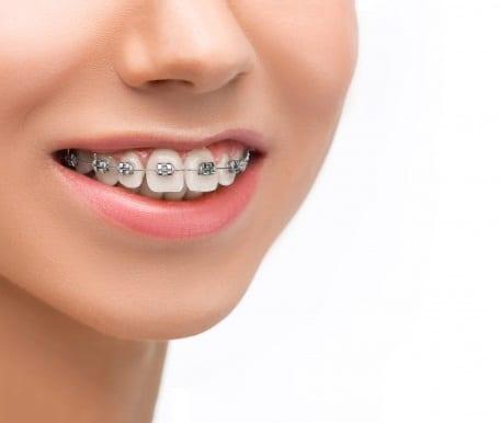 פלטות שקופות ליישור שיניים