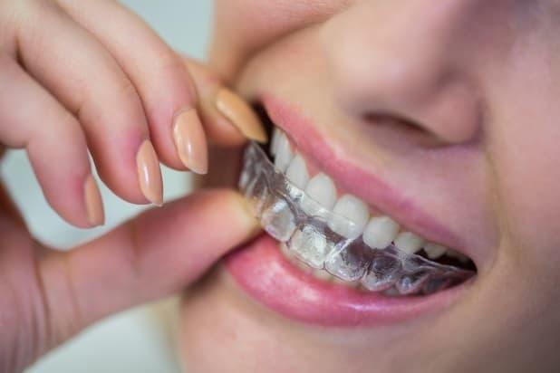 כיצד יש לשמור על השיניים לאחר הטיפול 