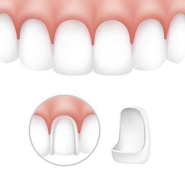 ציפויי שיניים חרסינה