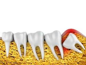 מהם הסיכונים בעקירת שן בינה?