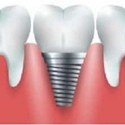 מה הטיפול הנכון אחרי עקירות שיניים