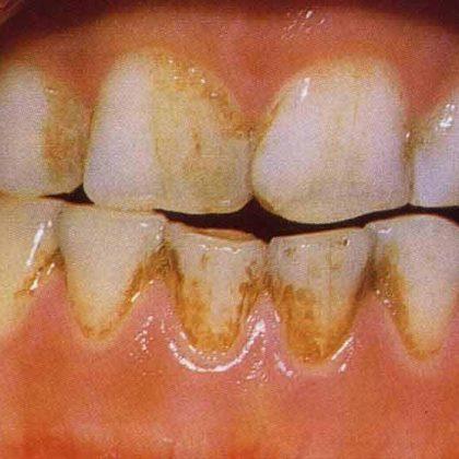 צביעת שיניים